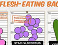 flesh-eating bacteria infographic